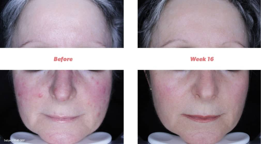 Rosacea Before And After Using Soolantra Ivermectin Cream